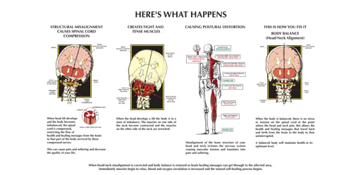 upper cervical care diagram